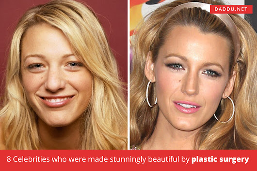 8 Celebrities who were made stunningly beautiful by plastic surgery