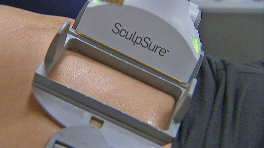SculpSure: Can This Nonsurgical Procedure Melt Body Fat? - ABC News