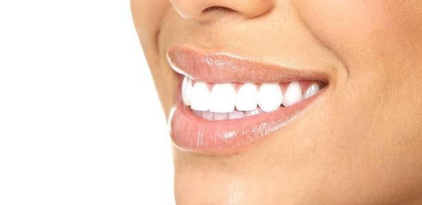 A halitose crônica geralmente é causada pela doença periodontal, resultado da má higienização bucal