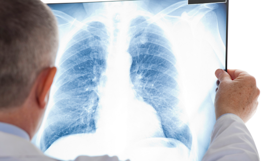 Union: DOL cost-cutting rule threatens black lung treatment