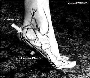 Lateral view from plantar fascia.