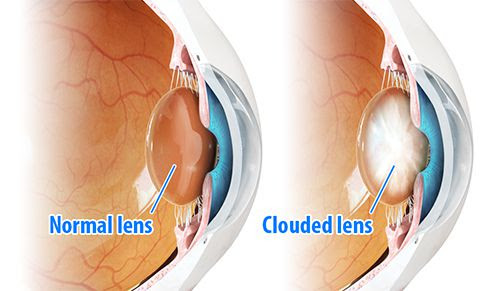 WHAT CAUSES CATARACT ? - Dada laser eye institute