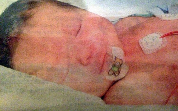 O milagre de Maisy, a menina que nasceu completamente sem sangue