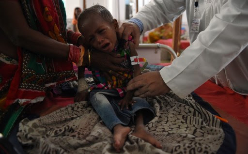 Exclusive: Number of severely malnourished children increased by 700 % in Delhi
