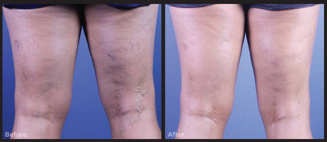 Case Study: Sclerotherapy Treatment for Leg Veins