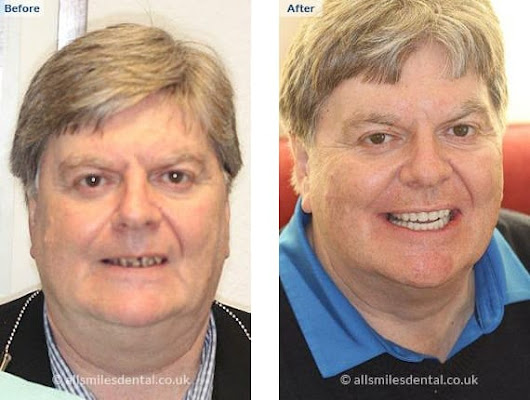 Sinus Lifts | All Smiles Dental Care Implant Centre