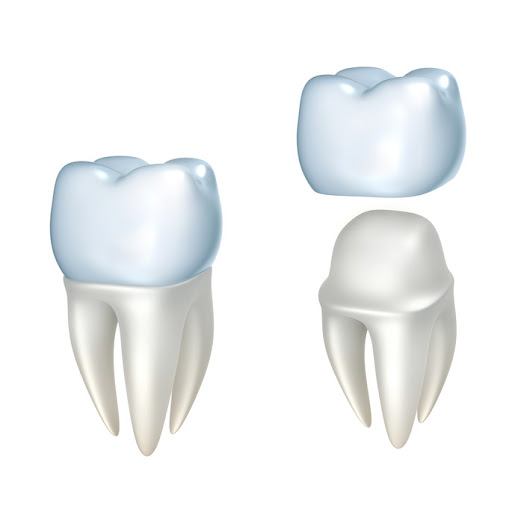 Crowning Achievement: Know The 4 Different Types Of Dental Crowns