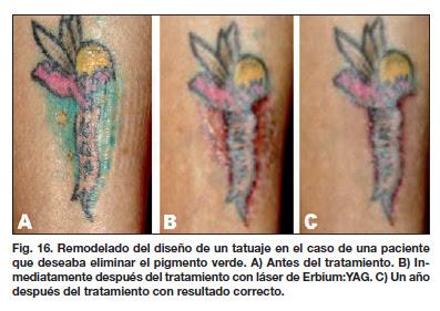 Tatuajes Y Su Eliminación Por Láser