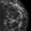 What Should I Know About Breast Calcifications?