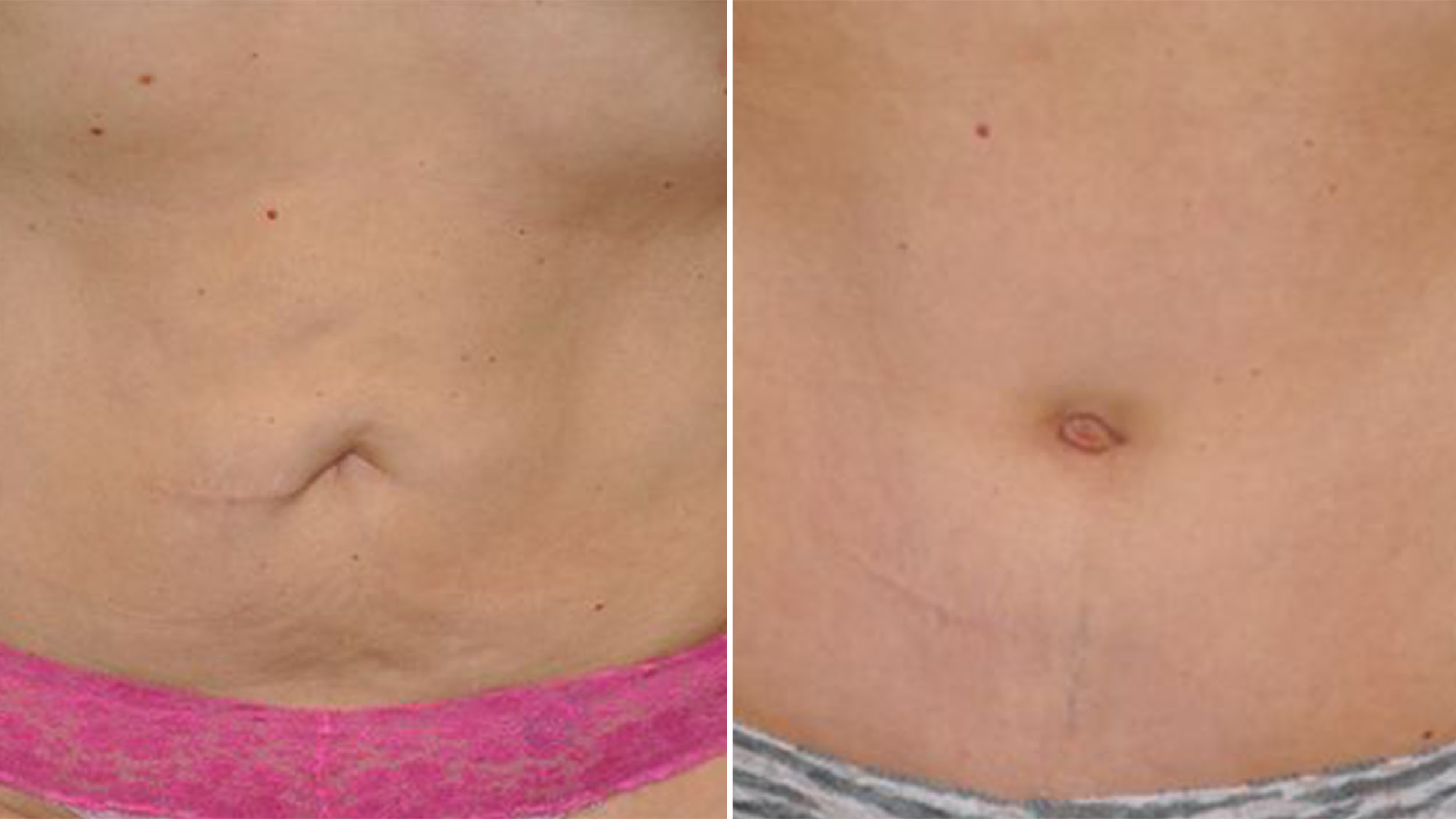 Belly Button Makeovers Computers Help Define The Perfect Navel