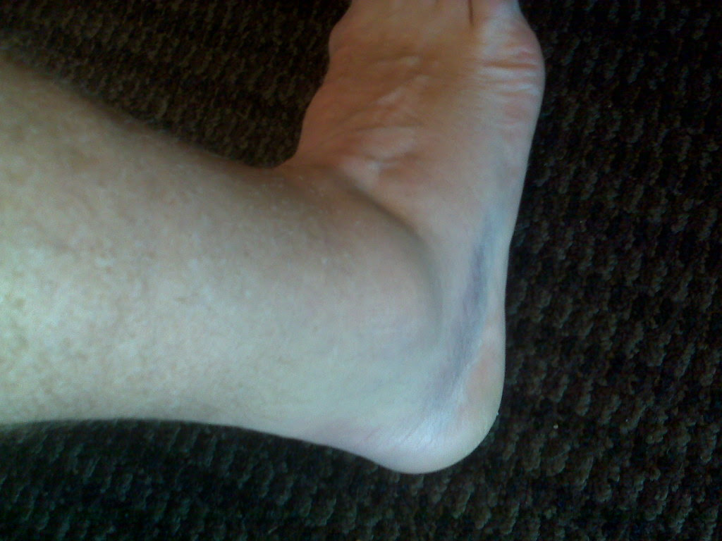Ankle Day 2