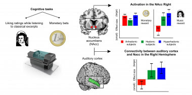 <p>Correlatos neurales de la anhedonia musical específica. / IDIBELL</p>