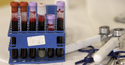 Not Every Drop of a Person's Blood Is the Same, a Study Says