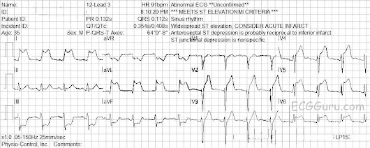 Instructor Collection ECG: Simultaneous Occlusions in LAD and Diagonal | ECG Guru - Instructor Resources