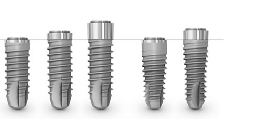 Les implants dentaires low cost ?