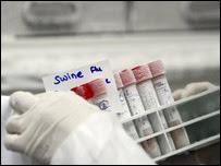 甲型H1N1流感抽血化驗