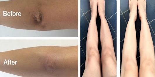 15+ Ways To Get Rid Of Black / Dark Knees & Elbows
