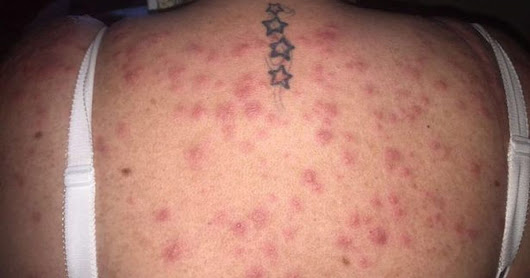 Mum says she was 'eaten alive by bed bugs' at Pontins' chalet