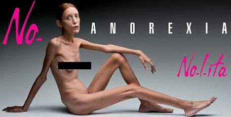 Tragic: Isabelle Caro, who appeared in this 2007 Italian ad campaign, has died at the age of 28