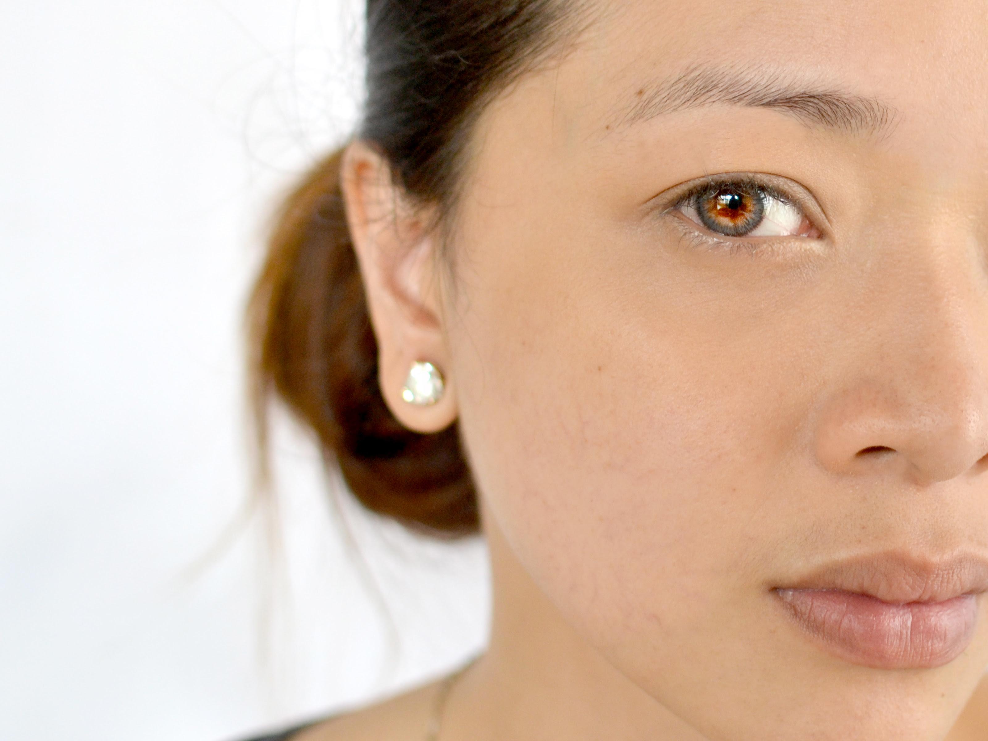 5 Ways to Get Rid of Dark Circles Under Your Eyes Fast ...