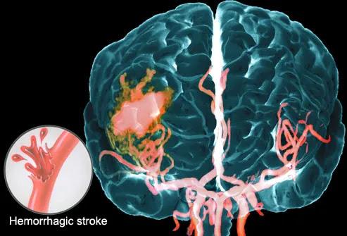 Hemorrhagic Stroke Seen on MRA of Brain