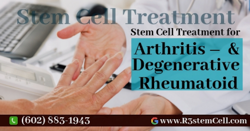 #Arthritis – #Degenerative & #Rheumatoid affects the joints, You can now treat this injury with stem...