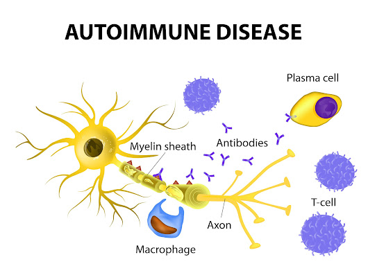 Triggers of Autoimmune Disease – Naturopathic Doctor News and Review