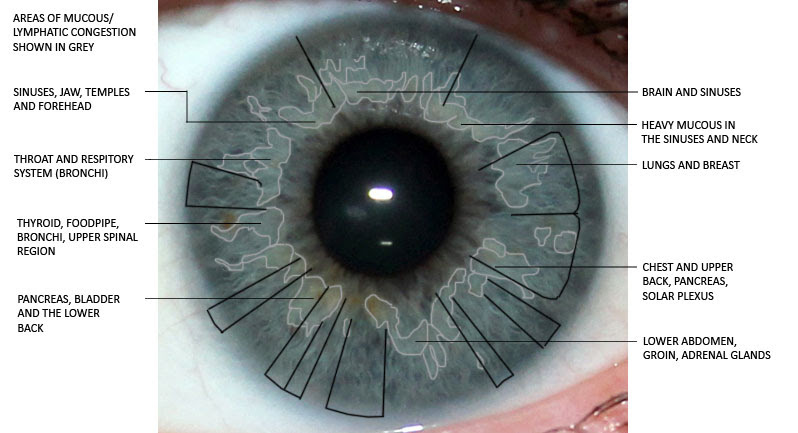 iridology, mucous congestion, iris reading, iris analysis, eye analysis