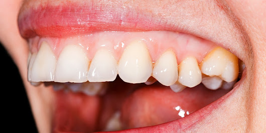 What Your Gum Health Can Tell You About the Rest of Your Body | SELF