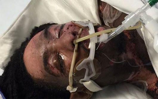 Burned Hate-Crime Victim's GoFundMe Needs Your Support – Gayety.co