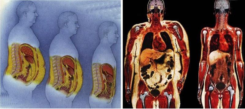 Почему растет живот? еда, живот, здоровье, факты