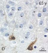 DCX-expressing cells in a 65 year-old hippocampus