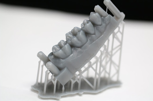 In-House 3d Printed Models - Stewart Dental Lab