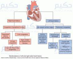 Diagnosis: Nursing Diagnosis For Heart Failure