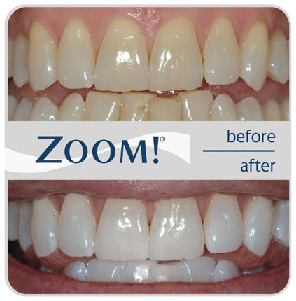 Keep Smiling..with Zoom Whitening! - The Dental Spa