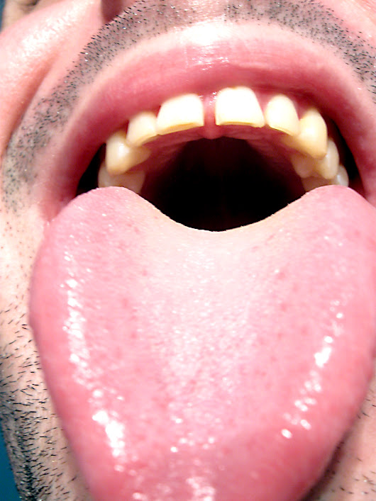 Tongue Discoloration