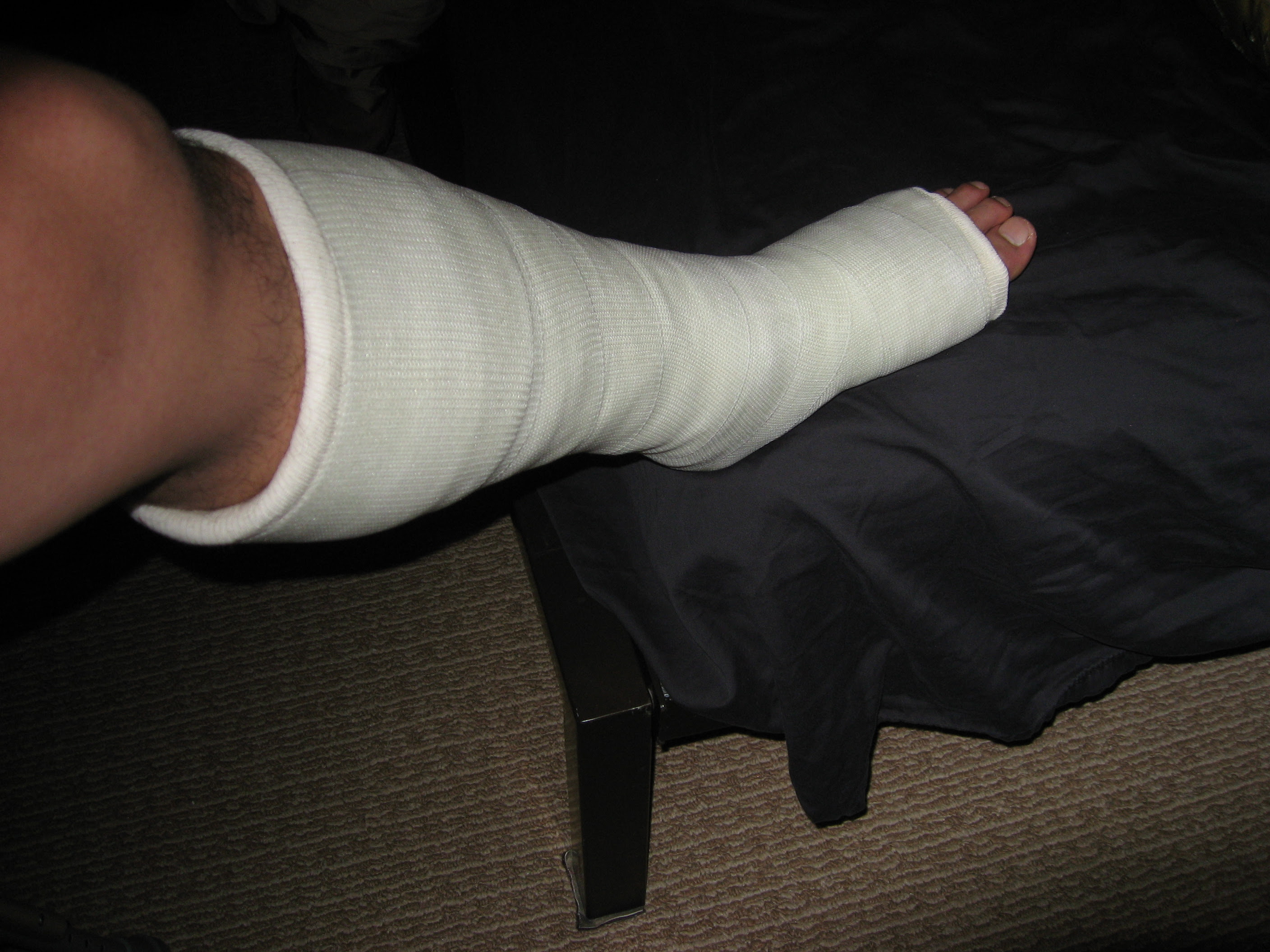 Achilles Tendon Injury Recovery Blog Surgery Day