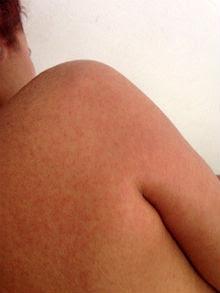 Nova doença apresenta sintomas comuns à dengue, com as manchas no corpo