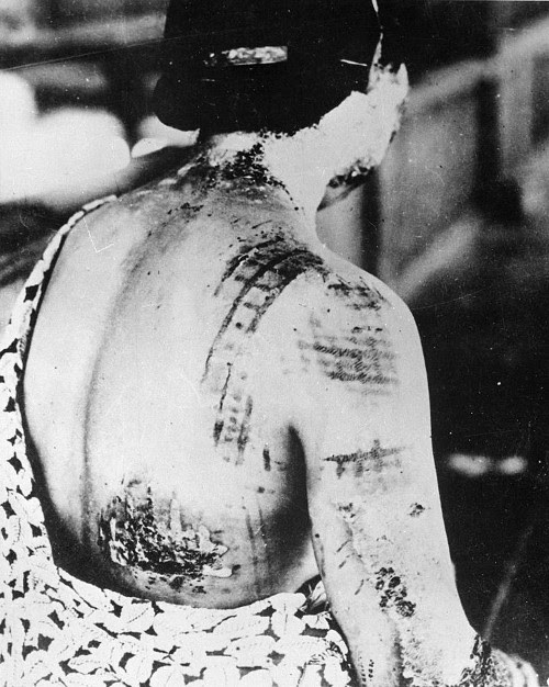 The patient's skin is burned in a pattern corresponding to the dark portions of a kimono.