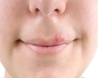 Effective ways to get help after being infected with herpes
