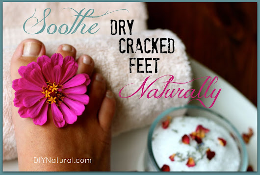 Dry Cracked Feet Can Be Soothed Naturally in 3 Easy Steps