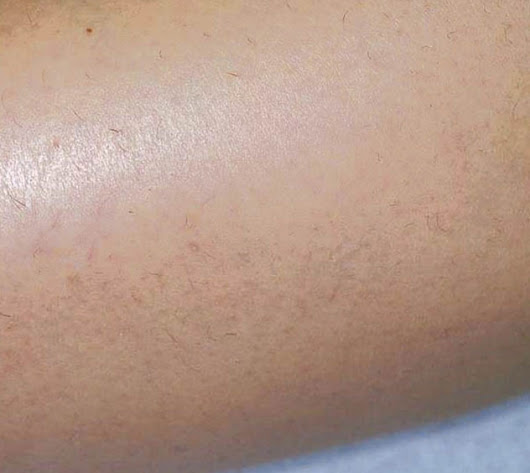 Icon Laser for scar and hair removal in Alpharetta and Roswell