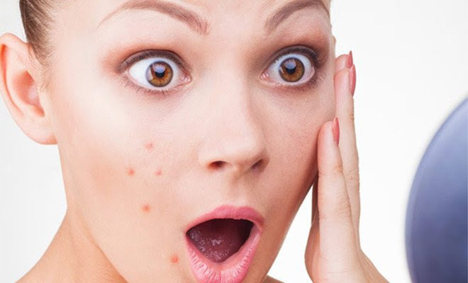 Image result for pimple
