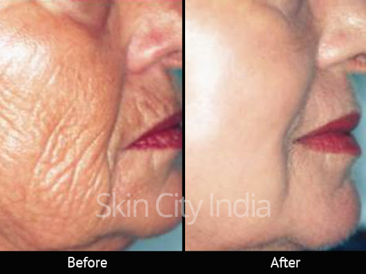 Anti Ageing Clinic Pune - Skin City | Health Care