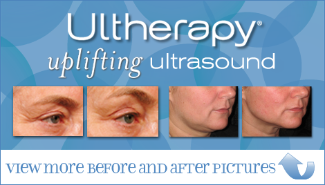 Skin Tightening with Ultherapy in San Francisco | Epi Center