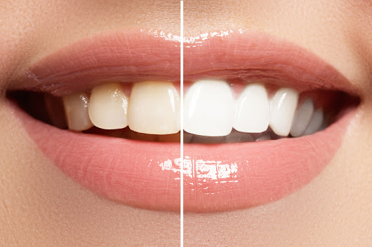 4 Teeth Whitening Tips For A Brighter Smile