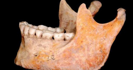 Paleo People Didn't Need Dental Check-Ups, But You Do