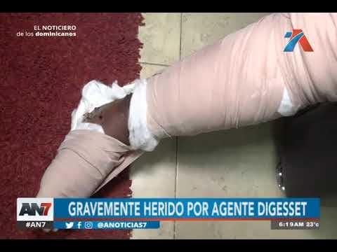 Agente de la Digesett le rompió pierna a macanazos