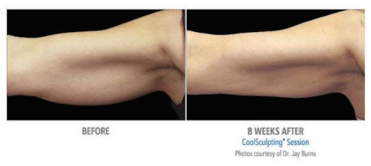 CoolSculpting Petite for Treating Upper Arms