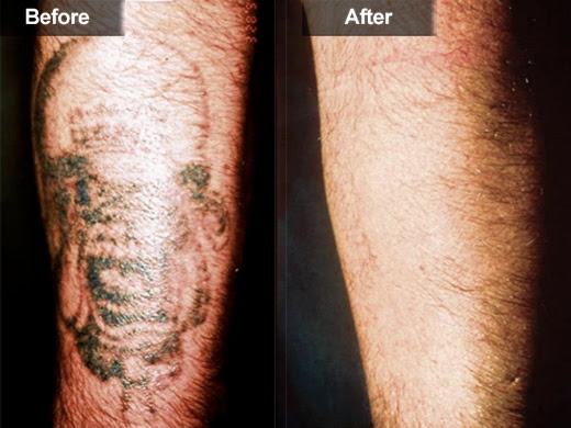 At Home Tattoo Removal With Light